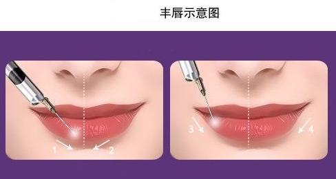 丰唇整形的材料有几种?