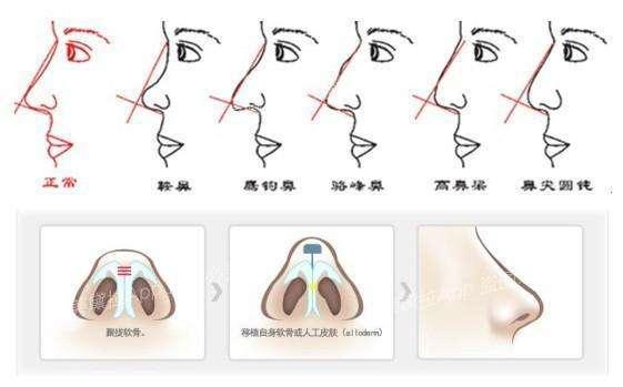 鼻尖整形术有哪些禁忌症?