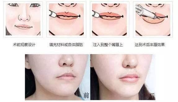 丰唇术整形术后有哪些副作用呢?
