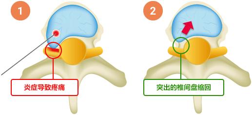 腰椎间盘突出用这一方法,只需三步90分钟出院!