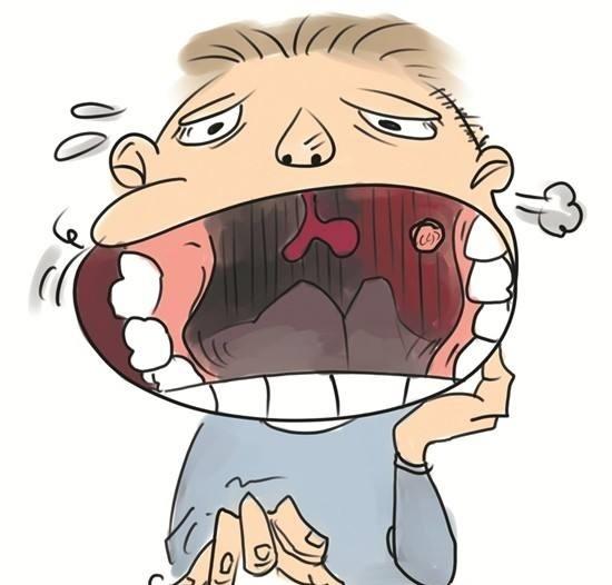 口腔溃疡是绝症,痛到昏厥的厥