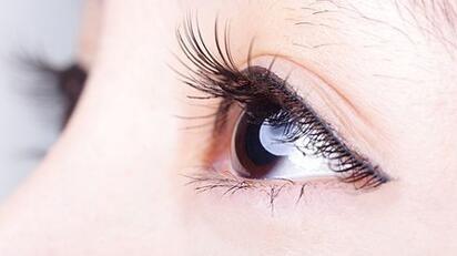 做双眼皮术后应该怎么护理才能快速消肿